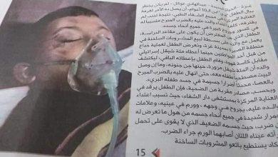 """Photo of بسبب ضرب والدهُ : وفاة الطفل """"عمر حازم محمود الملاحي"""" من قطاع غزة"""