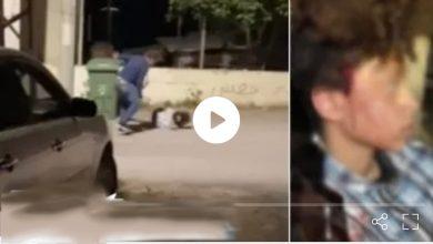 Photo of اتهام جريس نشاشيبي (41 عامًا) من عبلين بالاعتداء العنيف على فتاة لاخذها قطعة حلوى من الدكان دون دفع ثمنها